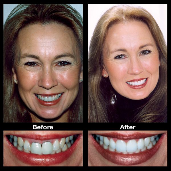 dental tooth repair