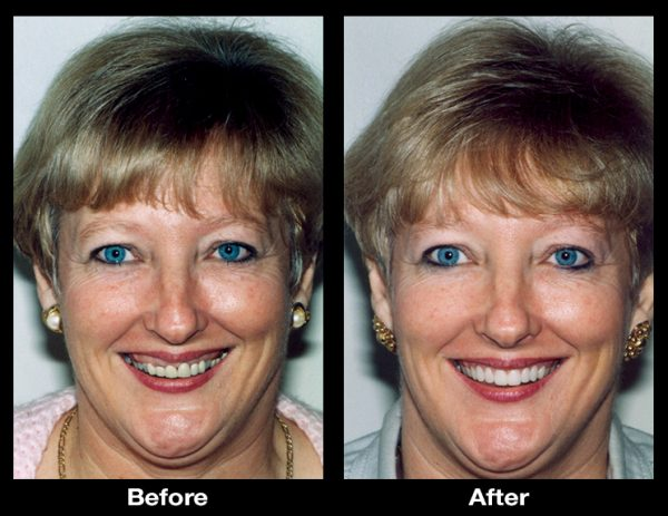 gummy smile correction surgery
