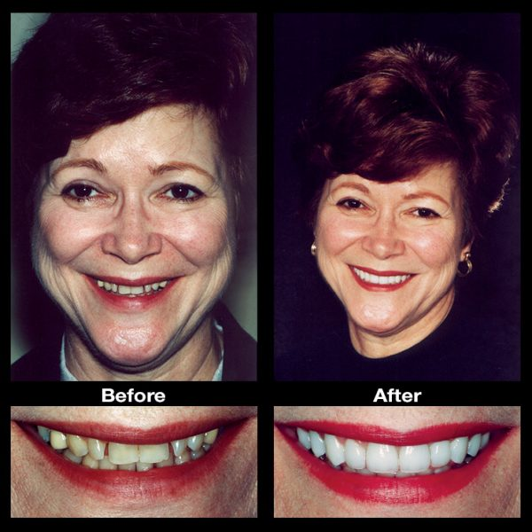 gaps in teeth before and after
