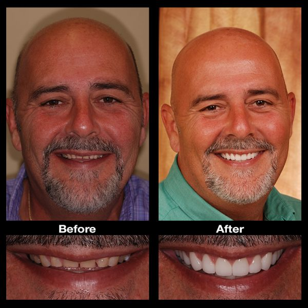 teeth restoration dentist