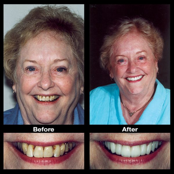 crooked teeth treatment before and after