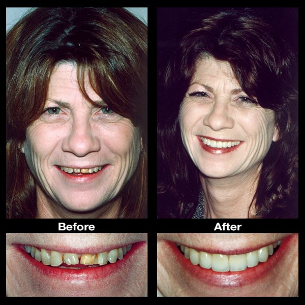 worn teeth enamel treatment