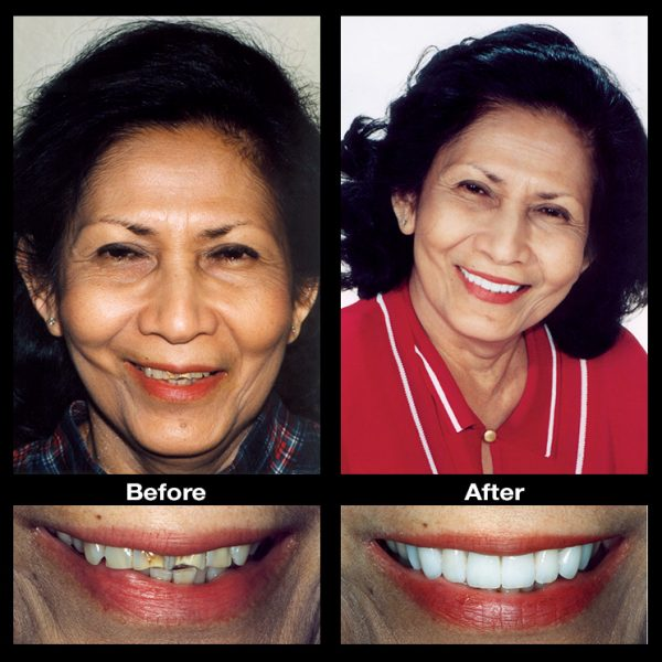 discolored teeth stain restoration