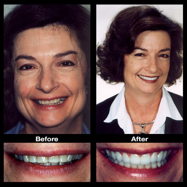 worn teeth restoration