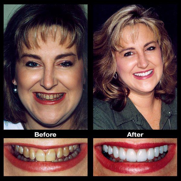 discolored teeth fix