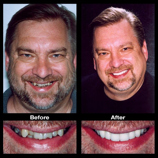 crooked teeth before and after